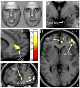 Angry and neutral faces during the task. Brain regions impacted following serotonin depletion: vACC - ventral anterior cingulate cortex; VLPFC - ventrolateral prefronal cortex. (Passamonti et al. 2011)
